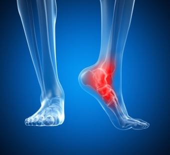 Puntofisio Studio di Fisioterapia, riabilitazione ortopedica