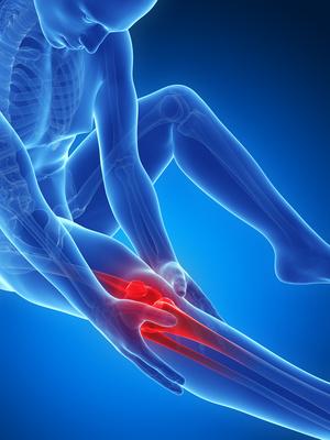 fisioterapia - Riabilitazione post traumatica