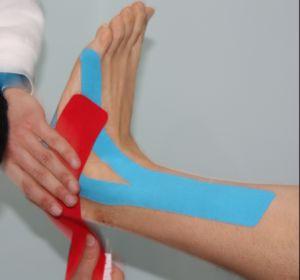 Puntofisio Studio di Fisioterapia, Taping Neuromuscolare